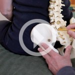 Demonstration of a Lower Lumbar Correction Part I